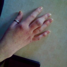 Swelling and joint deformity in middle finger.
